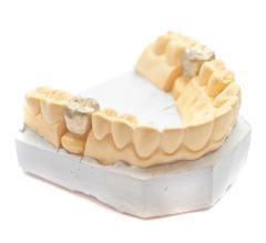 Verlust, Zähne, Prothetik, künstlich
